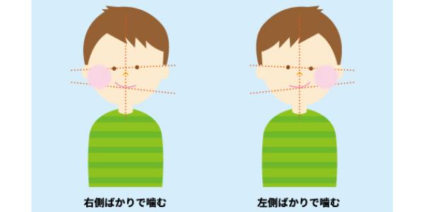 嚙み癖で現れる顎の歪みを表した図