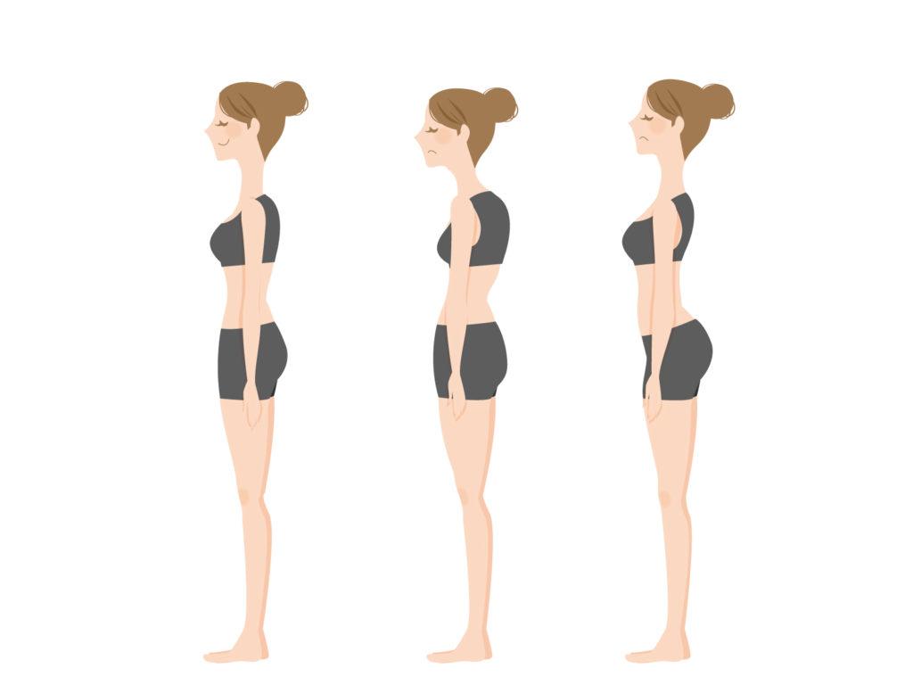 姿勢の崩れるパターンの図