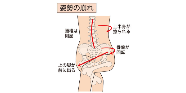 足を組んだ時の姿勢の崩れを表した図