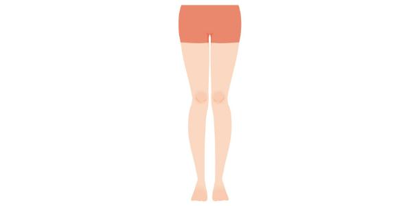 X脚を表した図